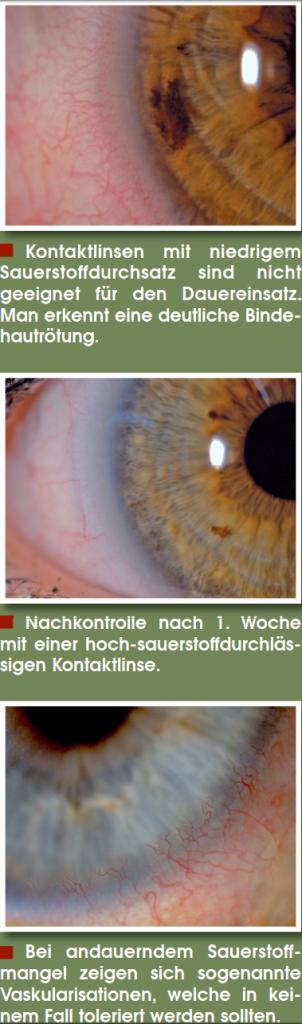 Kontaktlinsen sauerstoffdurchlässig Linsen Kontaktlinse Weißmann Augenoptiker Kontaktlinsenflüssigkeit Kontaktlinsenpflege