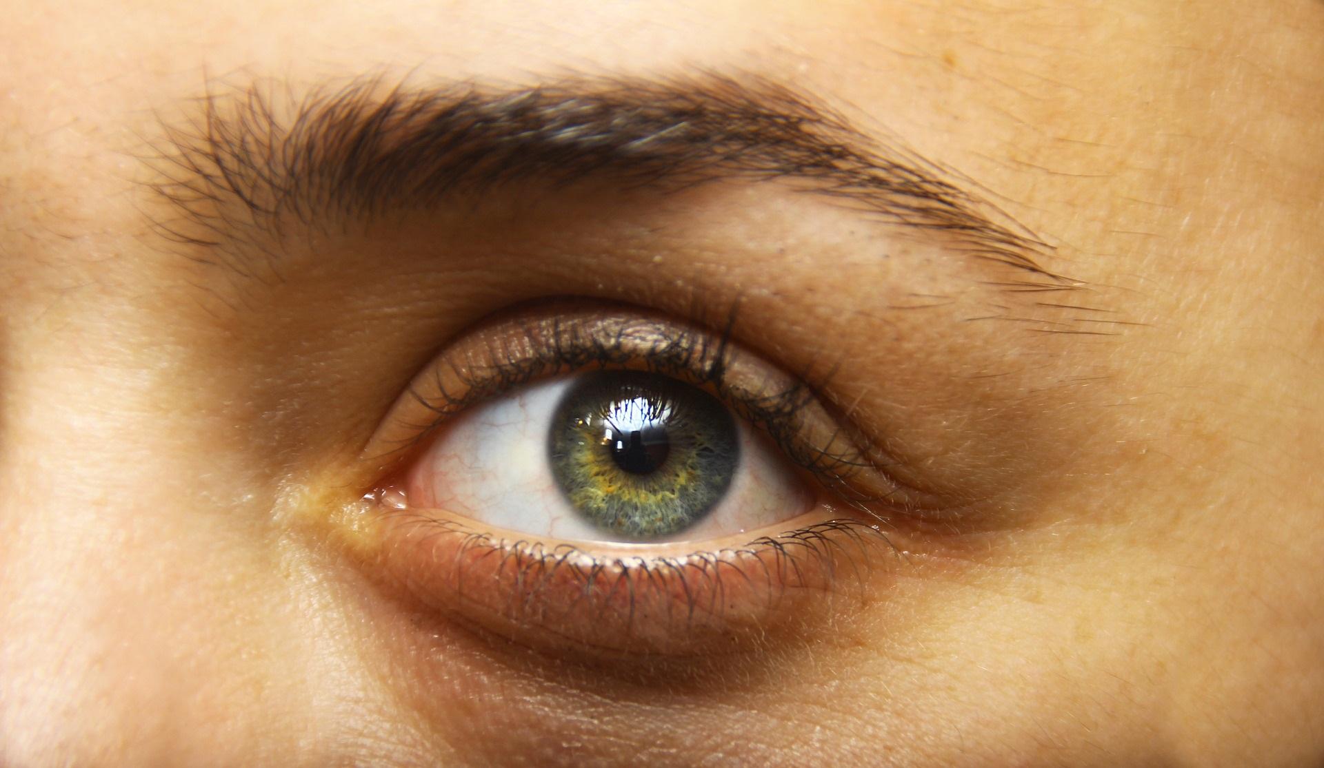 Augen vererbung braune grün Welche Augenfarbe