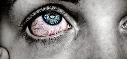 Augenallergien Auge Allergie Schützen Brille Optik Weißmann Oberaudorf Brillen kaufen Pollenallergie